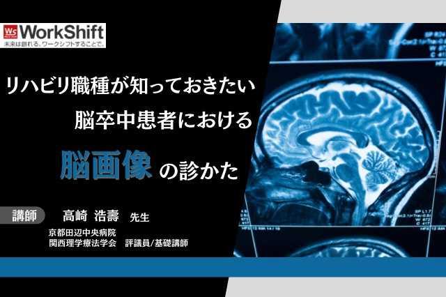 リハビリ職種が知っておきたい脳卒中患者における脳画像の診かた